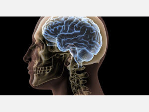 New Research Shows a Changeable Factor in Dementia