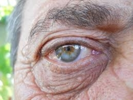 12 Different Ways Your Eyes are Warning You About Your Health