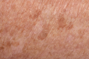7 Things that Cause Dark Spots and How to Get Rid of Them