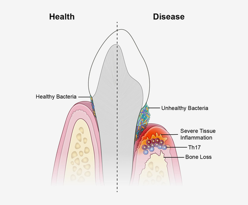 Gum Disease is Connected to Alzheimer's