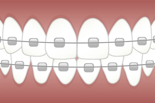 Why Older Adults are Getting Braces