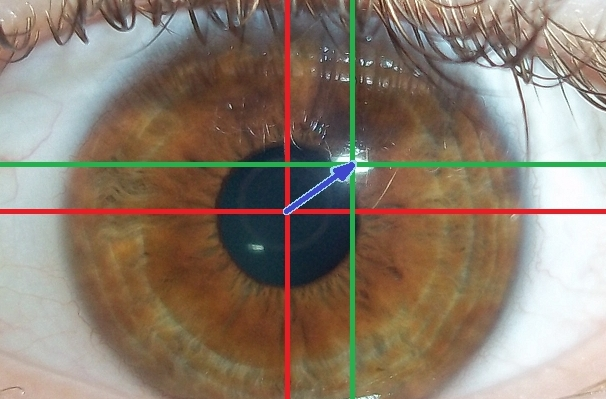 Eye Tracking Tests Can Help Detect Alzheimer's